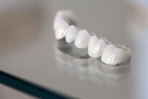 Dental Crowns and Bridges | Dentist Glenroy