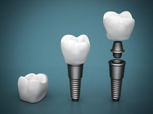 Dental Implants | Dentist Glenroy