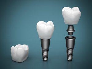 Dental Implants | Dentist Glenroy
