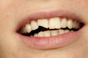 Fractured or Worn Tooth | Dentist Glenroy