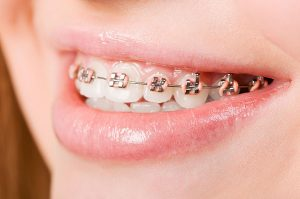 Orthodontics | Dentist Glenroy