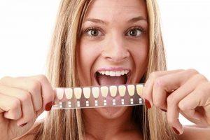 Porcelain Veneers | Dentist Glenroy