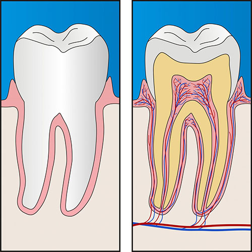 Root Canal Treatment | Dentist Glenroy