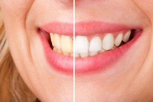 Teeth Whitening | Dentist Glenroy