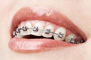 Dental Braces in Dentist Glenroy | The Glenroy Dental Group