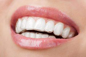 Invisalign | Dentist Glenroy