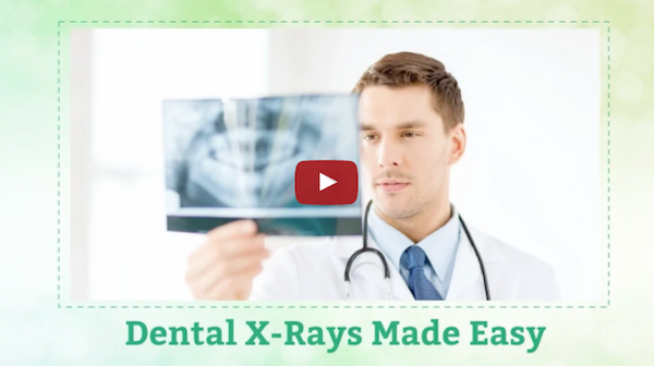 Modern Dental X-rays: Fast, Reliable and Efficient