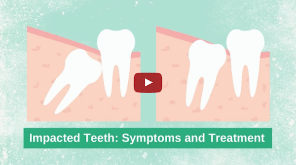 Warning Signs of Impacted Teeth