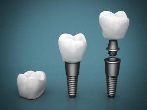The Dental Implant Advantage