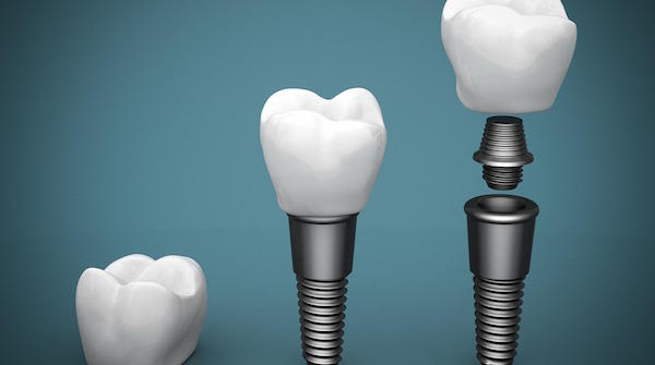 The Dental Implant Advantage