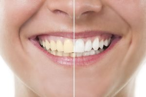 Yellow Teeth Top Causes and Treatments glenroy dentist