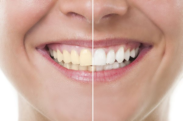 How To Whiten Yellow Teeth Instantly