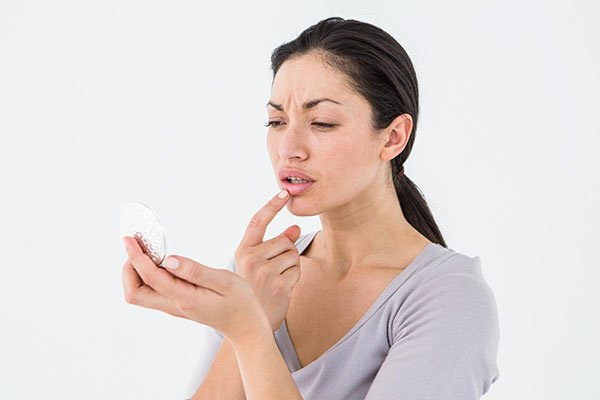 How To Get Rid Of Mouth Ulcers?