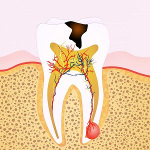 7 Warning Signs You Might Need Root Canal Treatment