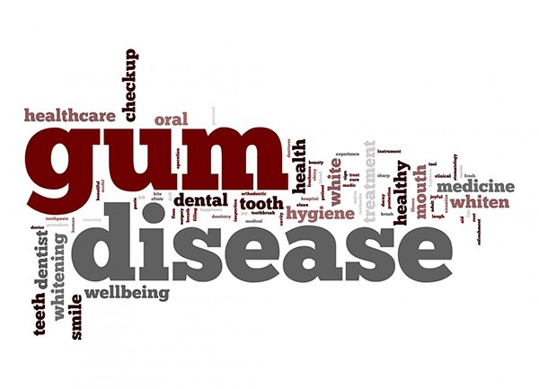 Gum Disease –Treatment And Prevention