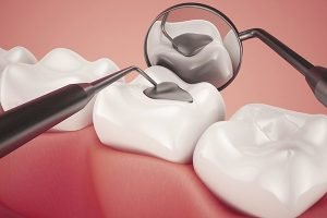 The Glenroy Dental Group | Lost Damaged Fillings Crowns And Inlays Onlays | Dentist Glenroy