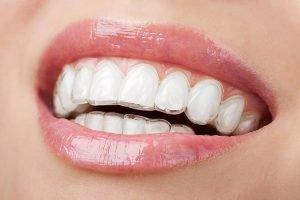 The Glenroy Dental Group | The Advantages Of Invisalign For Your Teens Smile | Dentist Glenroy
