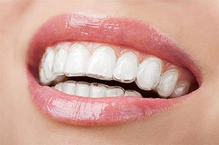 The Advantages Of Invisalign For Your Teen's Smile