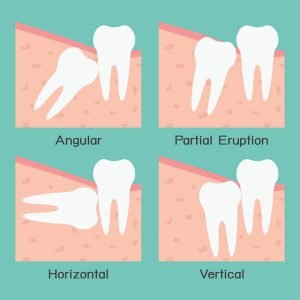 Extracting Wisdom Teeth and Aftercare | Dentist Glenroy