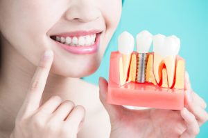 Dental Implants in Glenroy