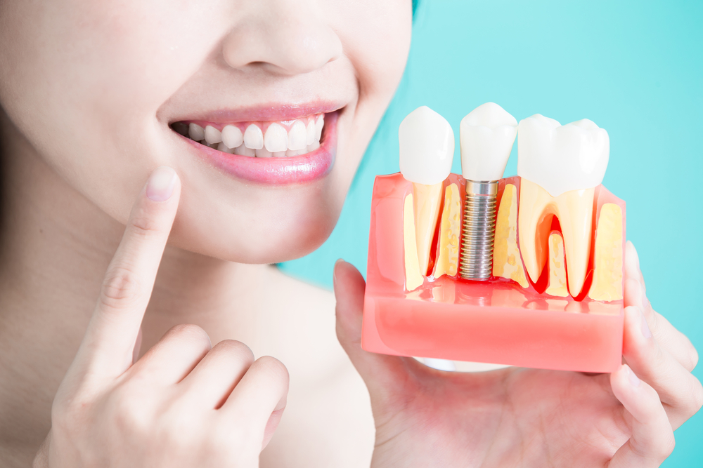 Is it Possible to Find Affordable and High-Quality Dental Implants in Glenroy?