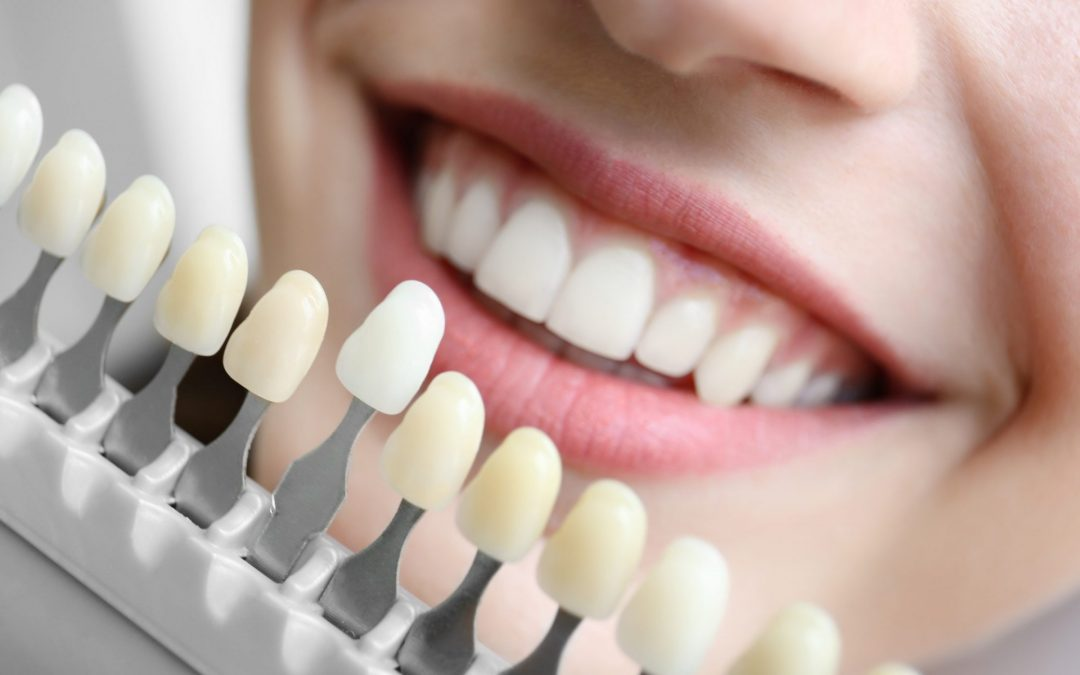 Affordable Modern Dental Implants in Glenroy