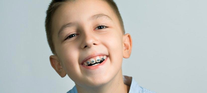 Why It Is Important For Your Child To Get Braces