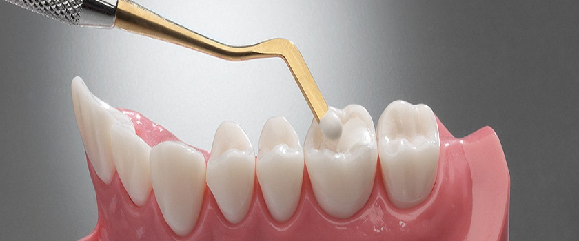 Glenroy Dental Guide – How Long Can You Expect A Dental Filling To Last