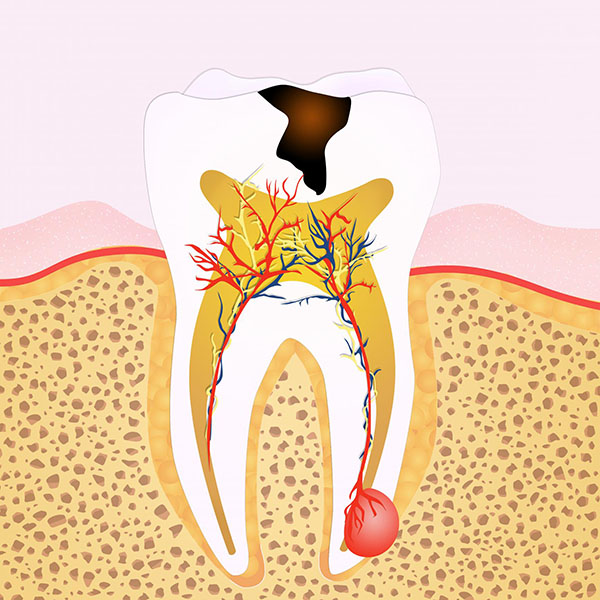 Dentist Glenroy Guide : What Are the Signs that You Need Root Canal Treatment