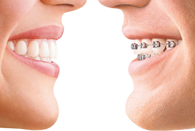 Top 3 Most Popular Braces Options For Adults