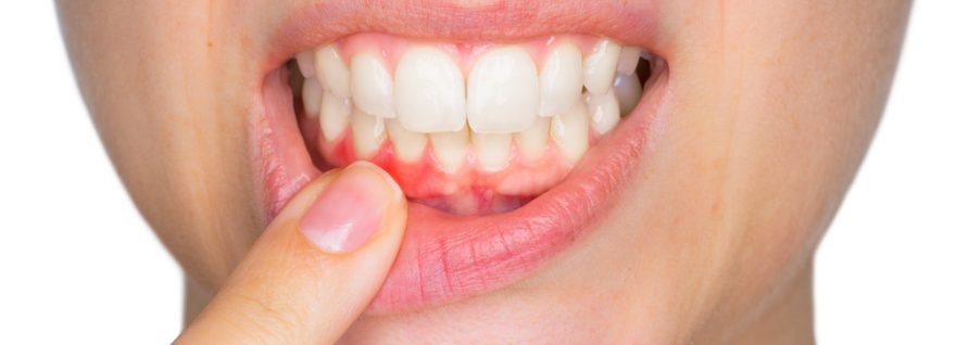 "Gum Disease – The ""Cure"" Is Treatment, Then Prevention"