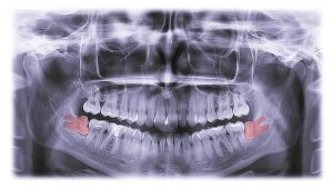 wisdom-teeth-removal-glenroy