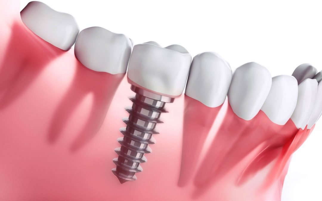 5 Reasons to Consider Dental Implants- Dentist Glenroy