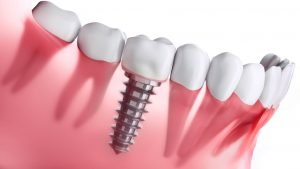 Dental implants cost in Glenroy