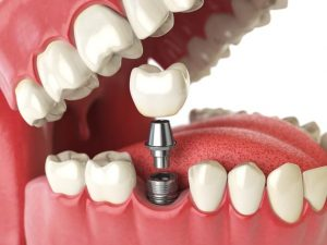 Where can I get Affordable Titanium/Zirconium Dental Implants in Glenroy?