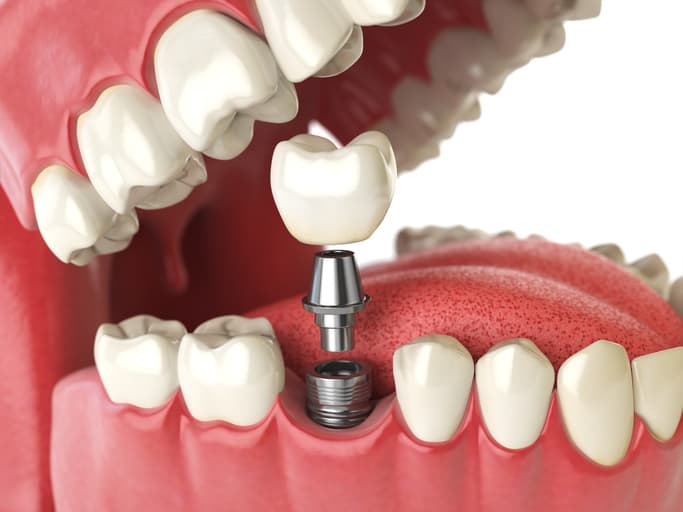 Where can I get Affordable Titanium/Zirconium Dental Implants in Glenroy