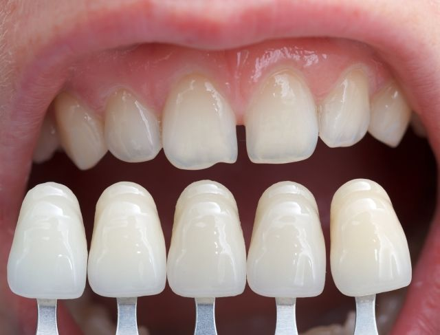 Where can I get quality dental veneers in Hadfield and Glenroy?