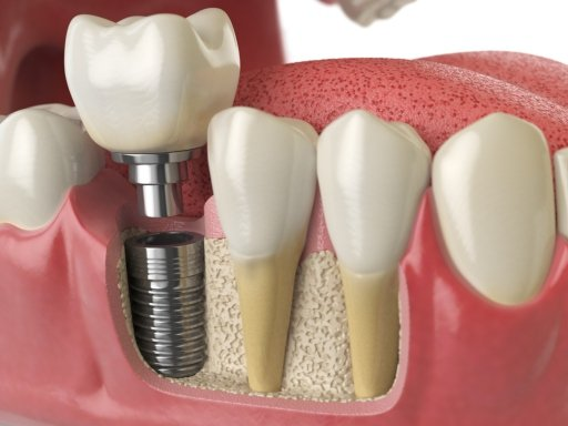 How Long Does the Dental Implant Process Take?