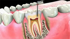 Is Root Canal Treatment Painful?