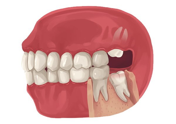 Are There Any Side Effects Of Removing Wisdom Teeth?