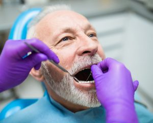 Tips to Look After Your Dental Implants