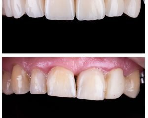 Tips to Look After Your Porcelain Veneers to Keep it Clean