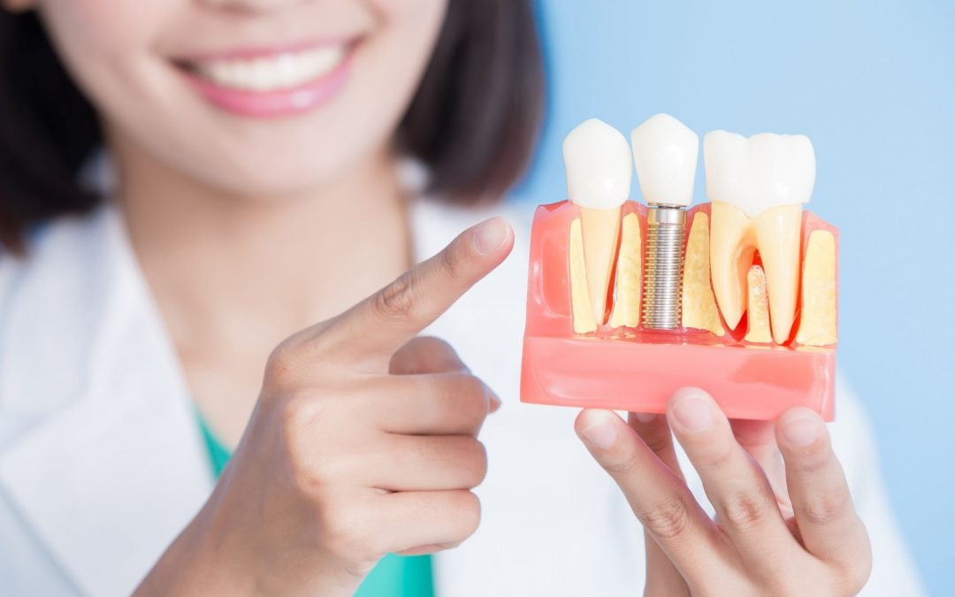 What is the Cost and Procedure for a Single Tooth Dental Implant?